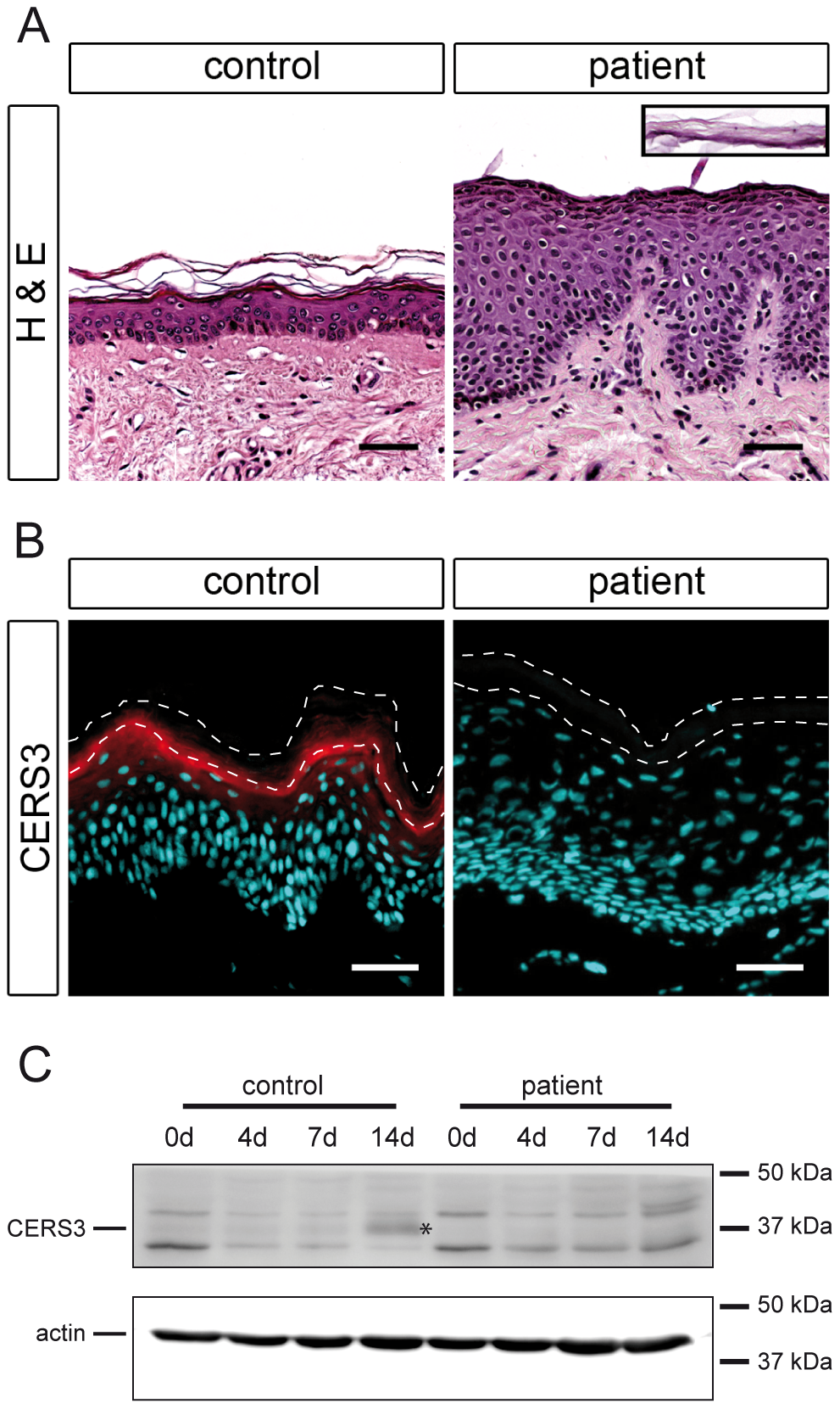 Histological analysis and CERS3 protein expression in skin biopsies and cultured keratinocytes from healthy controls and patient H.