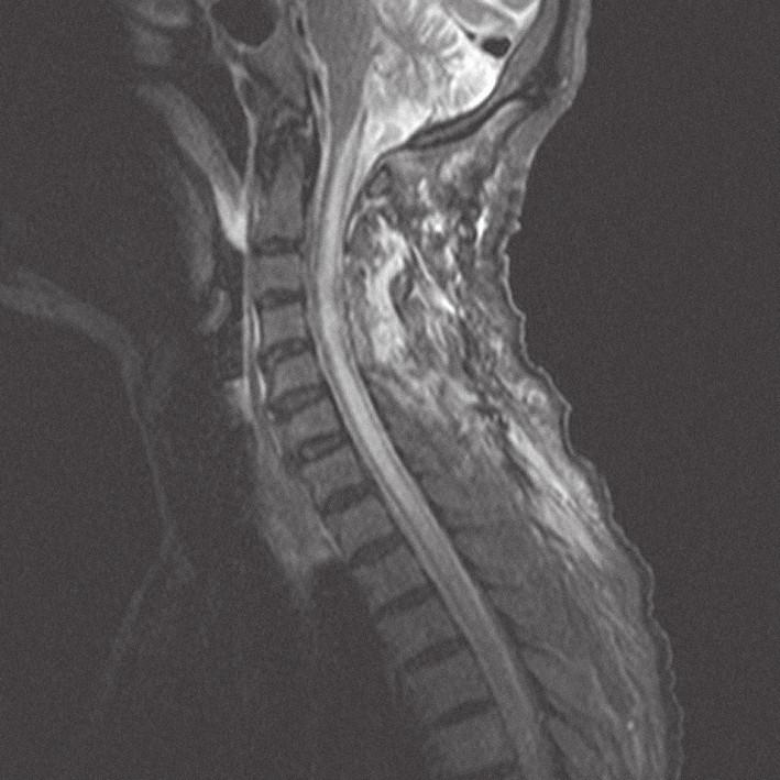 MRI krční páteře v sagitální rovině, ve STIR módu, dva dny po operaci, bez známek tumoru, se syringomyelickou dutinou.