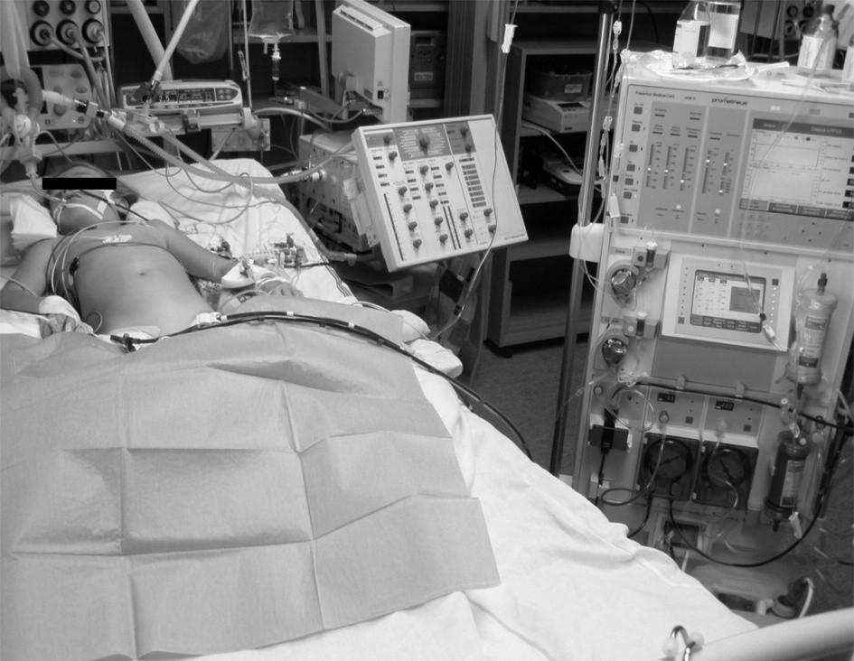 Sedmiletá pacientka na přístroji Prometheus