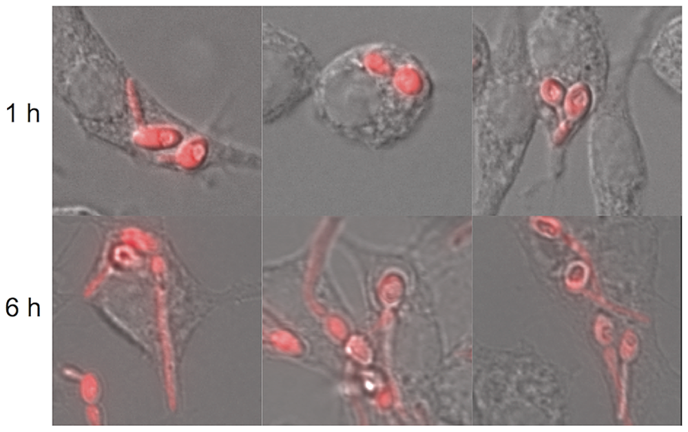 Morphogenesis of <i>C. albicans</i> within macrophages.