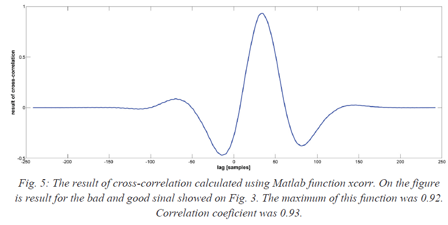 The result of cross-correlation calculated using Matlab function xcorr. On the figure is result for the bad and good sinal showed on Fig. 3. The maximum of this function was 0.92. Correlation coeficient was 0.93.