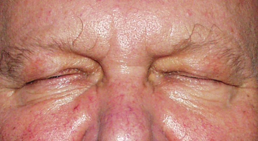 Stav postavení víček v době záchvatu – uzavření oční štěrbiny