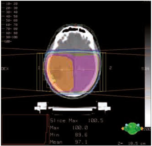 Izodózní rozložení dávky.  Předepsaná dávka je znázorněna oranžovou barvou.