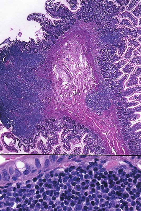 (a) Polypovité vyklenutí sliznice tenkého střeva se dvěma ložisky FL. (HE, 25krát) (b) V dolní části obrázku je patrné, že lymfom je složený ze středně velkých buněk s hyperchromními jádry. (HE, 400krát)