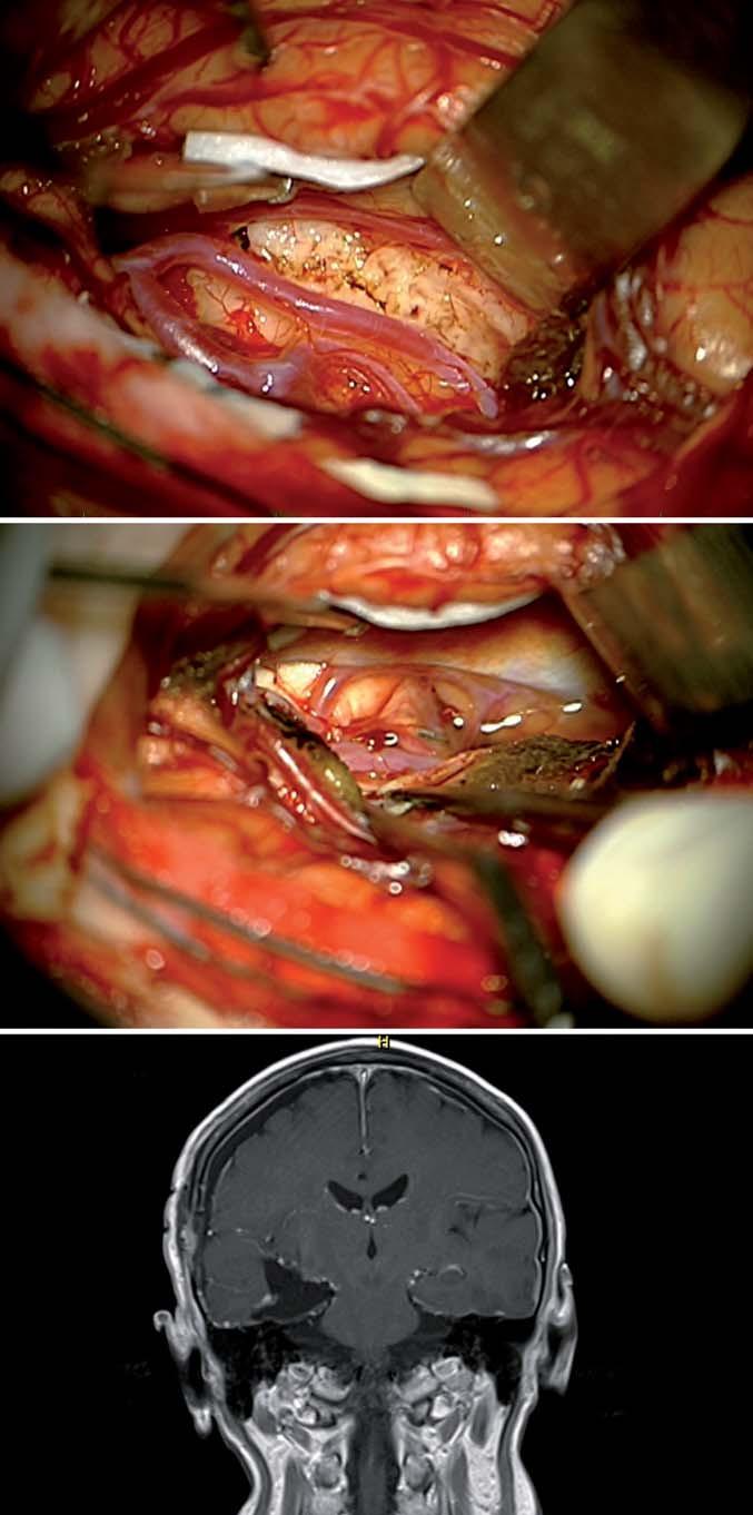 Přímý transsylvijský přístup přes sulcus periinsularis inferior. Fig. 5. Direct trans-sylvian access via sulcus periinsularis inferior.