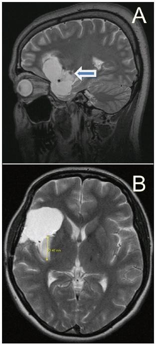 A. Postresekční dutina u 29leté pacientky (N.5) s gliomem WHO grade II (Yaşargil 5A) – dosaženo 92% resekce; šipkou je označeno drobné reziduum, jímž probíhají LLsA (předoperační MR obr. 5). B. Reziduum nádoru v posteriorní části inzuly u 25leté pacientky (N.4) s gliomem WHO grade II (Yaşargil 3B) – dosaženo 82% resekce (předoperační MR obr. 2a, b).