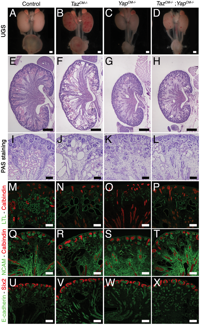 <i>Yap</i> and <i>Taz</i> have distinct roles during nephrogenesis.