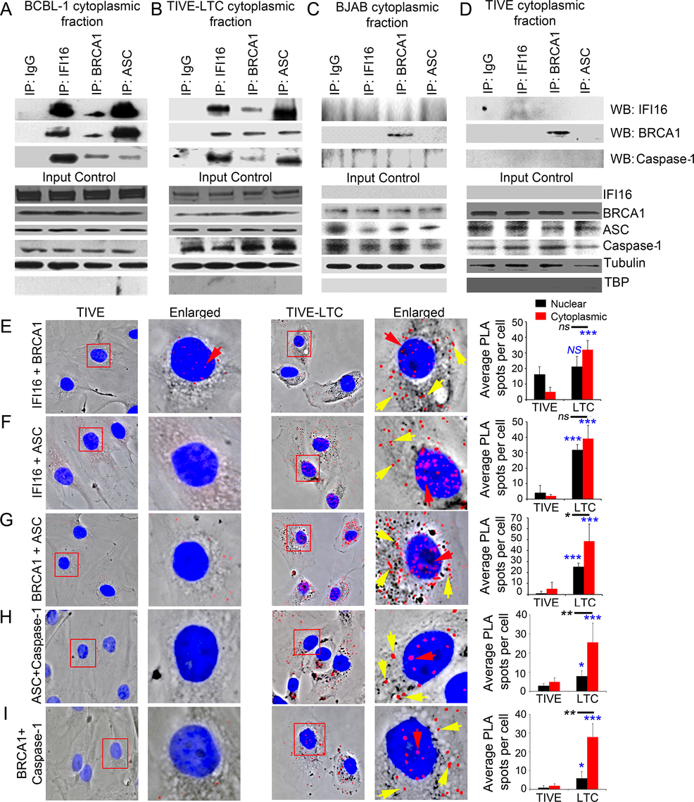 Analysis demonstrating BRCA1 is a member of the IFI16-inflammasome complex in cells latently infected with KSHV.