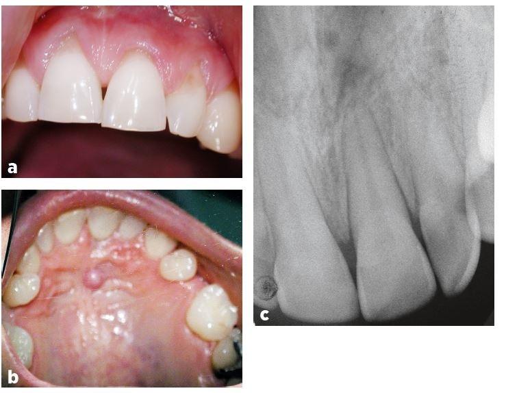 a, b, c Pohled na frontální úsek horního zubního oblouku ze strany vestibulární (a) a ze strany palatinální (b) (autoři se omlouvají za zhoršenou kvalitu fotografie), intraorální rentgenogram zubů 11–22 v Cieszyńského projekci (c)