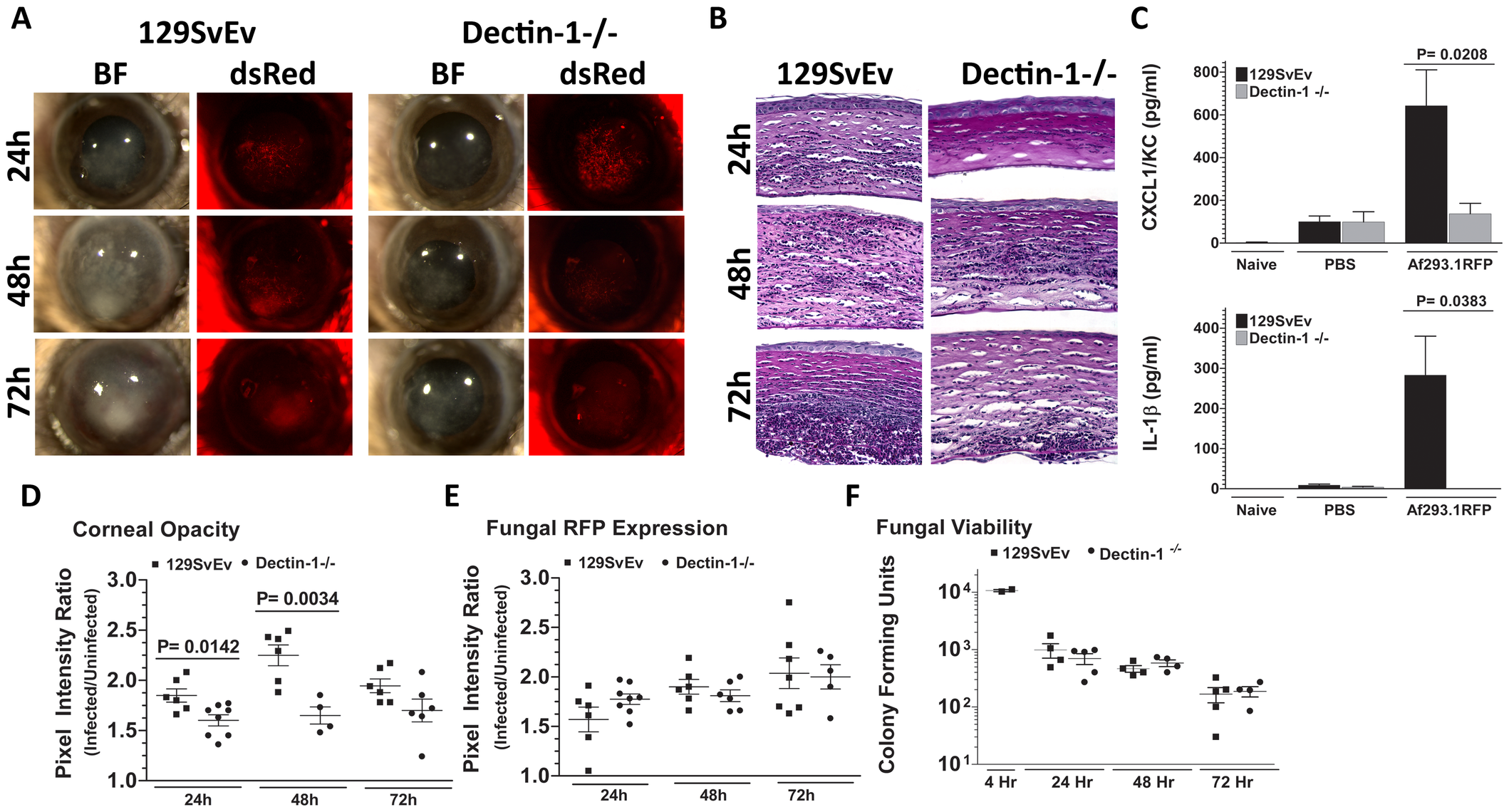 Role of Dectin-1 in keratitis caused by <i>A. fumigatus</i> Af293.1RFP.