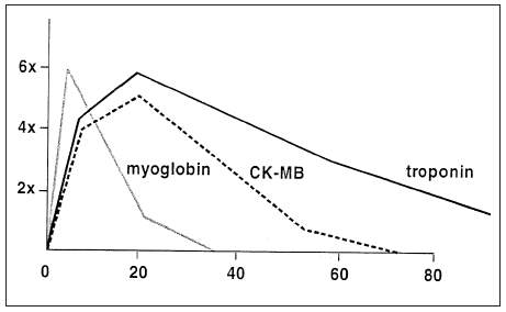 Graph 1: Values of biomarkers of myocardial necrosis in serum in time