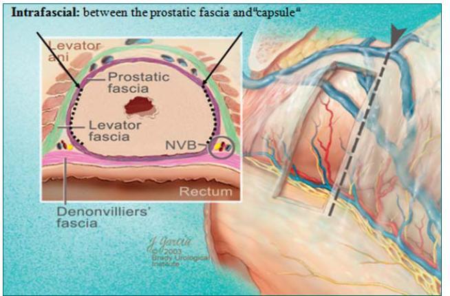 Schéma intrafasciální preparace (pod prostatickou povázkou).