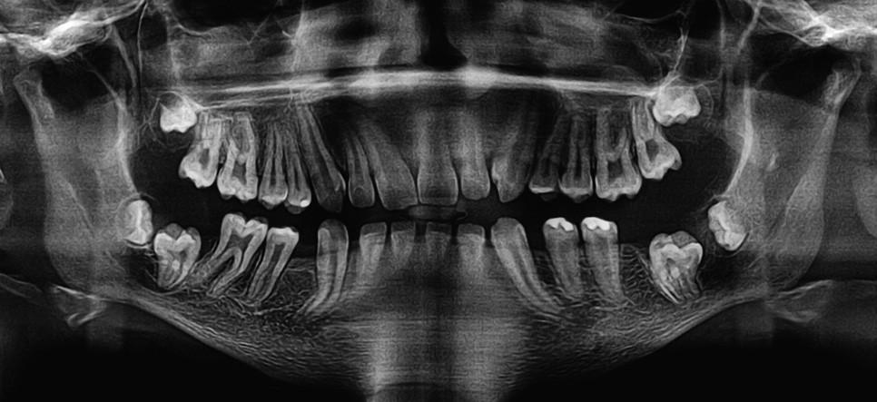 OPG snímek, retence zubů 37, 47 a změny na hlavicích obou temporomandibulárních kloubů