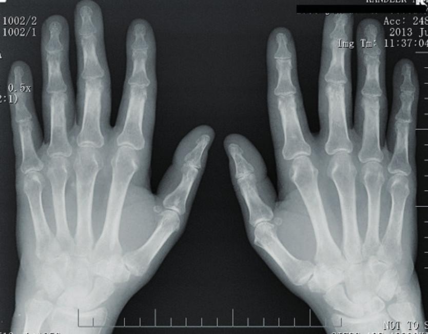 RTG rukou – periartikulární osteoporóza, zúžení kloubních štěrbin a erozivní změny na zápěstních kůstkách.