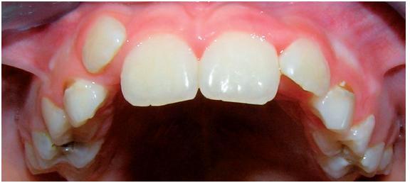 Horní zubní oblouk – frontální pohled