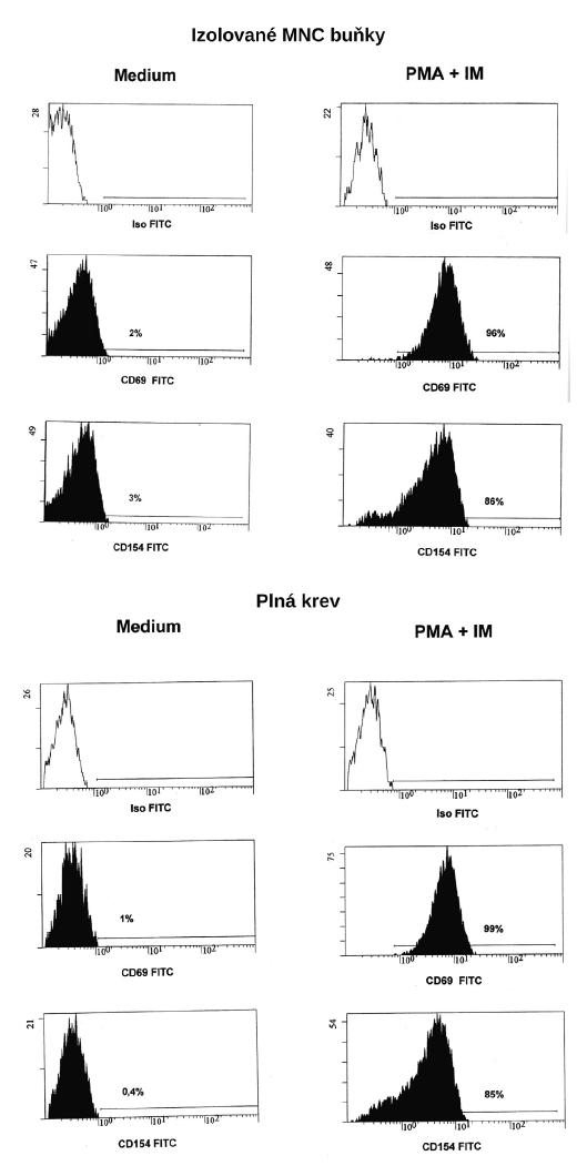 Vyšetření exprese CD154 na CD5+CD8- lymfocytech 3a) izolované buňky; 3b) plná krev