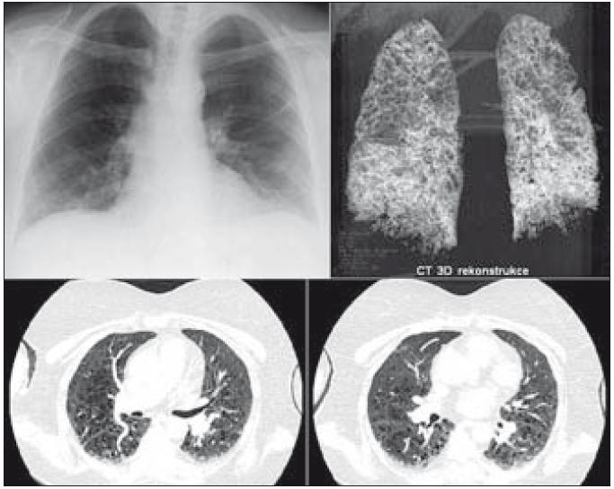 Obraz informuje, jak vypadá plicní forma LCH při různých způsobech zobrazení. Na snímku plic není zřetelné nic jednoznačně patologického, zatímco provedené HRCT plic zobrazuje velmi četné drobné plicní cysty, kterými je prostoupen celý plicní parenchym. Snímek plic však o nich neinformuje. Třetím způsobem zobrazení je třírozměrný obraz plic, vytvořený výpočetním systémem CT přístroje. V HRCT obraze není zřetelný četnější výskyt plicních nodularit, které jsou typické pro aktivní počínající formu nemoci. Jsou přítomny pouze četné cysty. Proto plicní postižení hodnotíme jako end stage formu poškození po dříve aktivní plicní formě LCH.