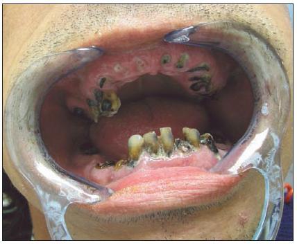 Malhygiena jako významný rizikový faktor vzniku alveolitis