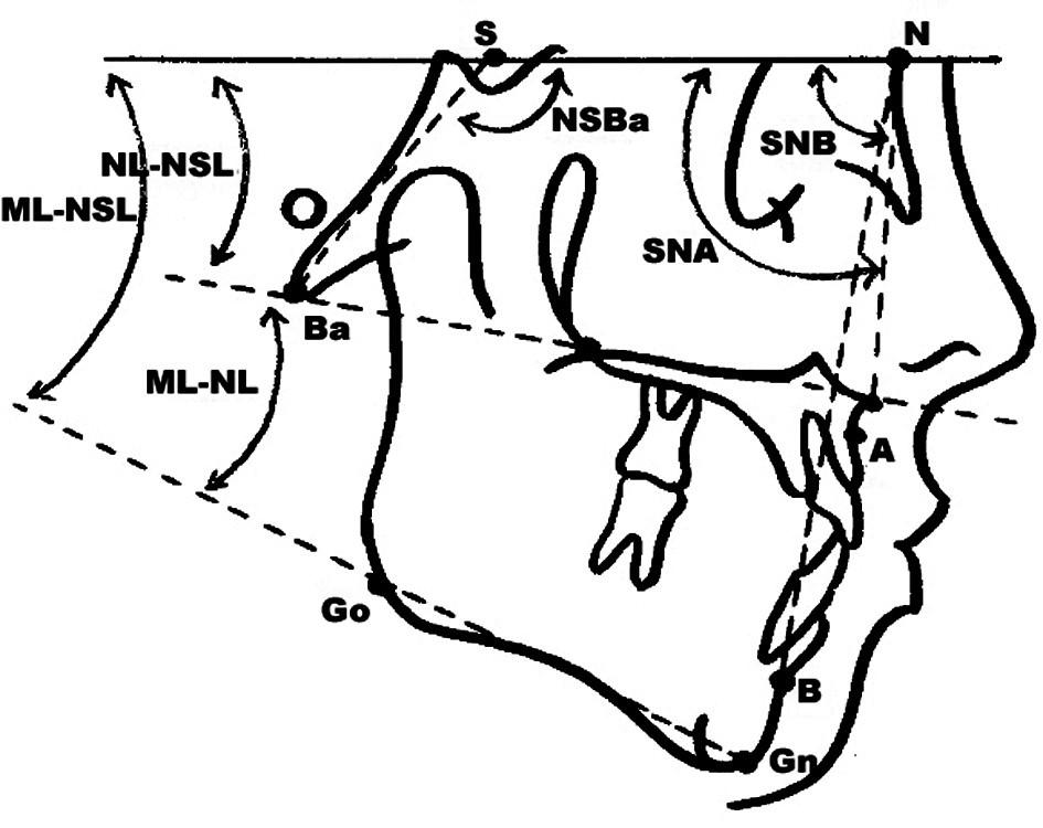 Pět základních kefalometrických hodnot: SNA, NL-NSL, NSBa, ML-NSL a SNB