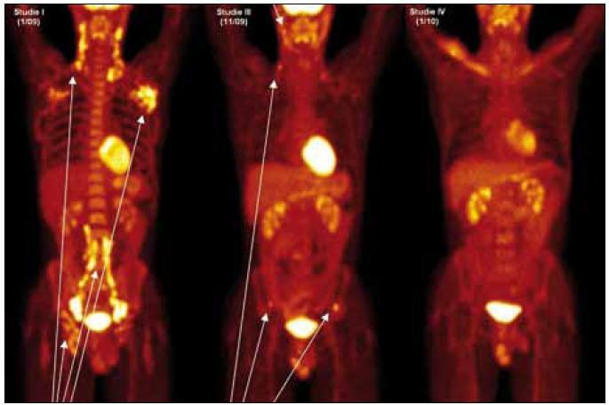 Obr. 10. PET-CT u muže narozeného 1973 s průběhem nemoci podobným lymfomu a s plicním postižením. Na prvním obrázku vlevo vyšetření před léčbou, je velmi dobře zřetelná patologicky zvýšená aktivita v oblasti krčních, axilárních, ilických a tříselných uzlin, ale nebylo zřetelné poškození kostí. Na prostředním obrázku, který byl proveden v době relapsu dva měsíce po ukončení léčby 2-chlorodeoxyadenosinem, je zřetelná patologicky zvýšená aktivita v oblasti krčních uzlin a dále v oblasti lopat kostí kyčelních, kde na low dose CT byla prokázána osteolytická ložiska. Na obrázku vpravo je vyhodnocení účinnosti léčby po dvou cyklech CHOEP a zde není zřetelná žádná patologická akumulace flurodeoxyglukózy.