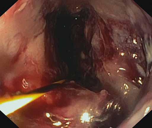 Viabilné granulačné tkanivo na spodine nekrózy po úspešnej nekrektómii. Fig. 4. Viable granulation tissue after a successful necrectomy.
