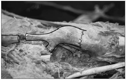 Anatomická studie úponu šlachy m. tibialis posterior na os naviculare pedis.