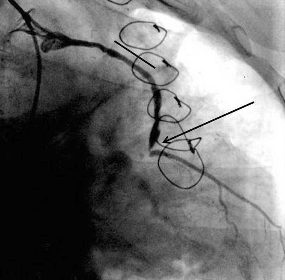 Selektivní koronarografie žilního štěpu na ramus diagonalis. Je patrno nálevkovité ústí štěpu. Oblast dříve implantovaného stentu MGuard (čára) je bez významné restenosy a je patrna kritická 90% stenosa v distální anastomose (šipka).