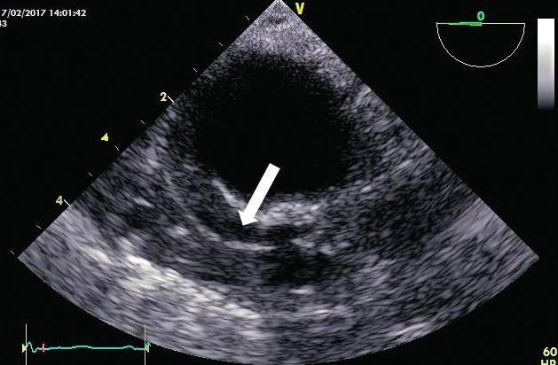Intramurální hematom TEE obraz sestupné aorty v krátké ose s hematomem v zesílené stěně (bílá šipka) při absenci odtržené intimy.