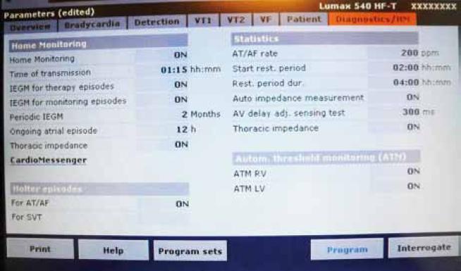 """Aktivace služby Biotronik Home Monitoring během ambulantní kontroly. Položka Home Monitoring (zapnutí, čas odesílání """"trendových"""" dat, odesílání IEGM epizod, odesílání IEGM monitorovaných epizod, odesílání periodického IEGM, definice délky dlouhé síňové epizody, měření hrudní impedance), položka Holter Episodes (odesílání informací o síňových arytmiích a arytmiích v zóně VT hodnocené jako supraventrikulární), položka Statistics (nastavení síňové frekvence pro definici síňové arytmie, definice klidového období, automatické měření impedance, nastavení testovacího AV delay pro měření amplitudy komplexů QRS, hodnocení údajů hrudní impedance), položka ATM (automatické měření prahu na pravo- a levokomorové elektrodě)."""