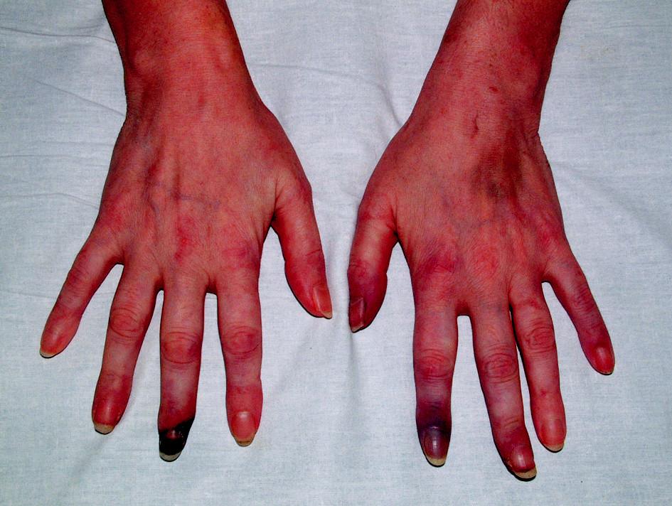 Ischemické změny prstů HK podmíněné SLE s antifosfolipidovým syndromem.