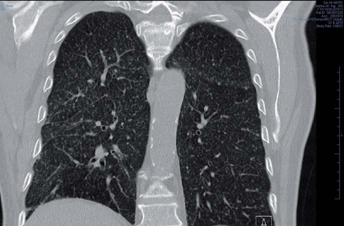 HRCT plic s nálezem mikronodulárního procesu typického pro tuberkulózní postižení. Fig. 3. HRCT scan of lungs with micronodular process typical of tuberculosis.