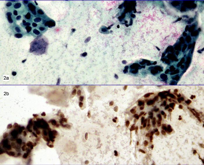 a-b. 68 let 2a. Nátěr – polychrom. Skupiny buněk s atypickými hyperchromními jádry. Závěr: ASC-H. – 2b. Průkaz MIB 1 v odbarveném nátěru pozitivní téměř ve všech buňkách vyšetřovaného trsu. Doporučeno histologické došetření – zatím neprovedeno