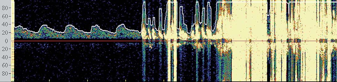 Spektrální křivka znázorňující četné sprchy MES detekované po postdilataci.