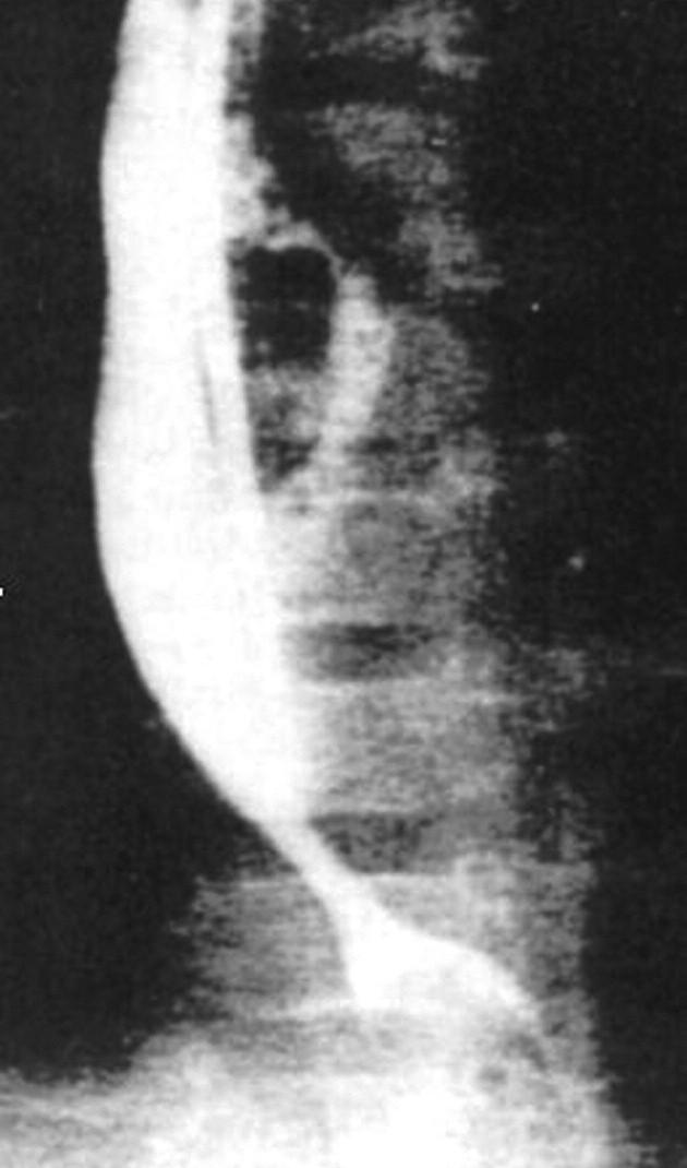 Refluxní striktura před dilatací a operací. Fig. 1.Reflux stricture before dilation and surgery.