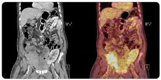 PET/ CT obraz velké metastázy karcinomu z Merkelových buněk do transplantované slinivky (pravá jáma kyčelní) u pacienta po kombinované transplantaci slinivky a ledviny (levá jáma kyčelní).