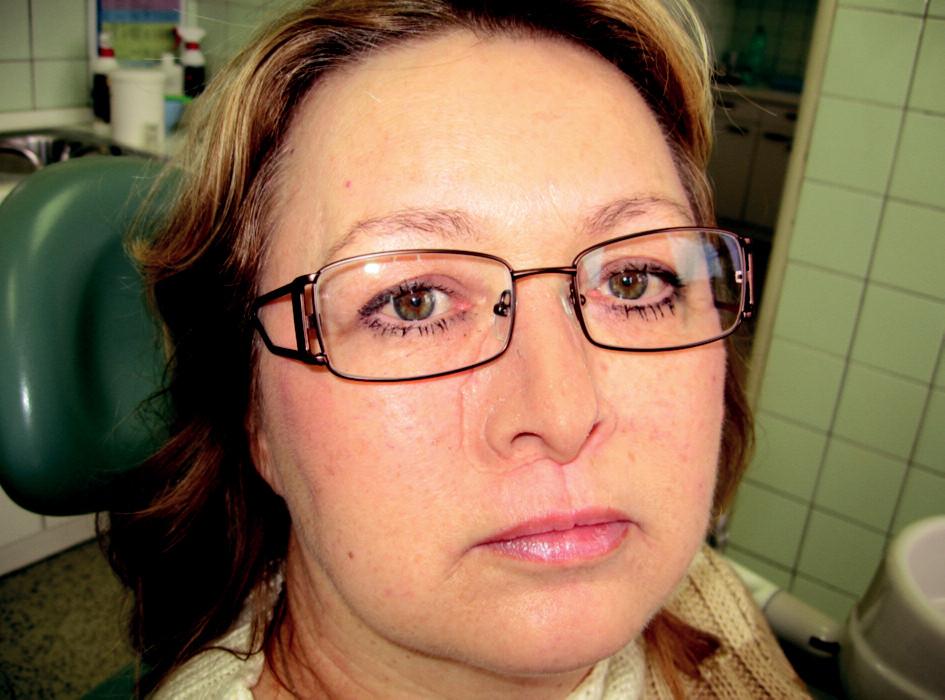 Nosní epitéza fixovaná na obličeji pomocí brýlí.