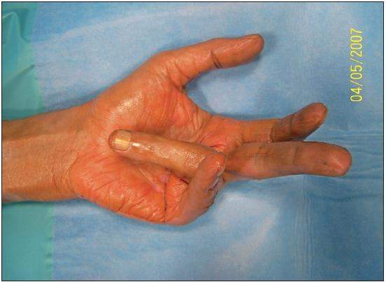 Fig. 1. Pre-op, stage IV. Elderly patient, age 85, that met selection criteria