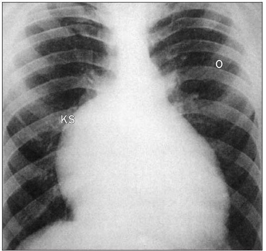 RTG Ebsteinovy anomálie ukazuje plicní oligemii a prominentní pravou konturu srdce.