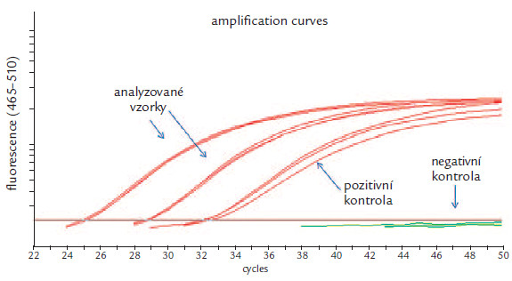 Analýza genu SEPT9: dva amplifikované vzorky, pozitivní a negativní kontrola.