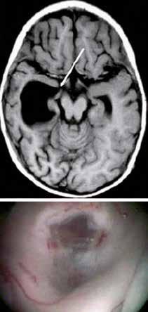 Temporální ventrikulostomie. Na snímku z MR (obrázek nahoře) je znázorněno místo, kde byla provedena stomie(obrázek dole) [38].