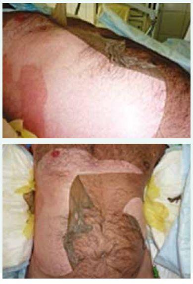 a obr. 5. Rozsáhlá nekrolýza kůže trupu se spontánním odlučováním.