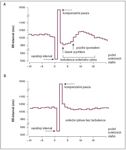 Příklad rozdílné turbulence srdečního rytmu. Na horním obrázku je zřetelné zkrácení a prodloužení intervalů RR (zrychlení a zpomalení srdečního rytmu) po kompenzační pauze po komorové extrasystole. Na spodním obrázku není patrna prakticky žádná změna v intervalech RR po komorové extrasystole – prakticky žádná turbulence; upraveno dle [35].