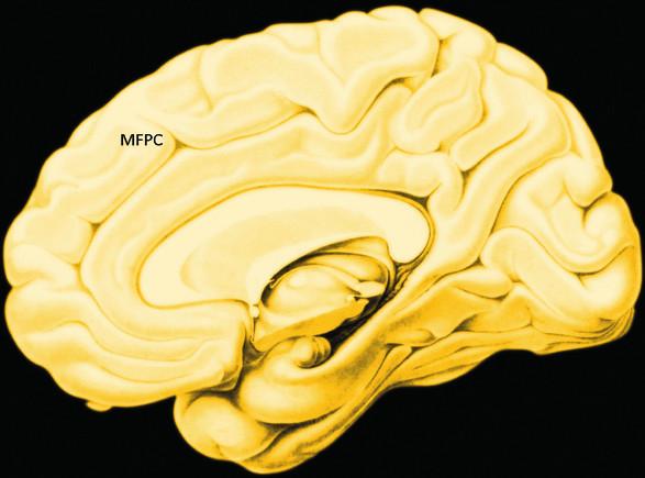 Empatie: oblasti mozku aktivované experimentální zátěží na přesnost empatického rozlišování. Těžiště i aktivita systému empatie se mění podle typu zátěže (46) MFG – střední čelní závit, PMC – premotorická kůra, IPL – lobulus parietalis inferior, STS – sulcus temporalis superior, RPFC – přední prefrontální kůra, MPFC – vnitřní prefrontální kůra