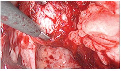 Figure 12. Laparoscopic-vaginal dissection of the apex of vagina