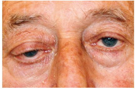 Obr. 1a Pacient s tumorem očnice při přijetí – protruze pravého bulbu.