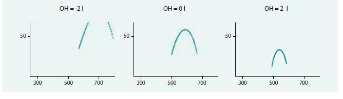 Zobrazení půlkružnice impedančního vektoru na přístroji BCM Fresenius – vliv převonění u 3 žen