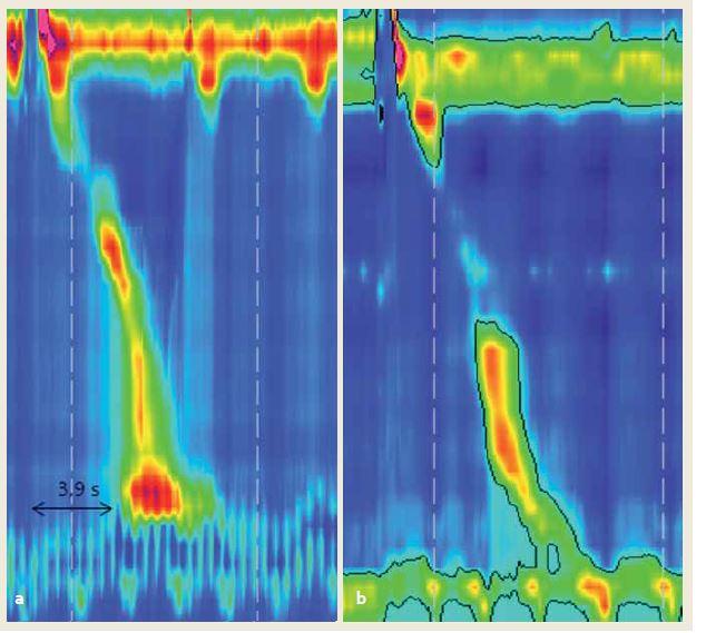 Kontrakcia hodnotená z hľadiska charakteru a) predčasná – pre diagnózu distálneho pažerákového spazmu potrebné aspoň 2 takéto kontrakcie v manometrickej štúdii, b) fragmentovaná so zlomom na 20 mmHg izobare. Fig. 3. Contraction pattern a) premature – at least two contractions prerequisite for diagnosis of distal oesophageal spasm, b) fragmented with a break on 20 mmHg isobaric contour.