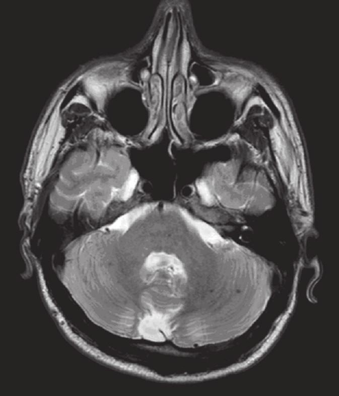 a, b. MR mozku: T2 vážený obraz transverzálně (v odstupu jednoho měsíce): podstatná regrese nálezu T2 hyperintenzity přetrvávající výrazněji pouze supratentoriálně okcipitálně (obr. 5a). V obou mozečkových hemisférách jsou nyní výrazněji patrné tečkovité hypointenzity odpovídající hemosiderinovým depozitům drobných hemoragi í (obr. 5b).