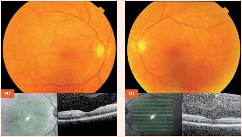 Nález 2 mesiace po pôrode (3. 6. 2013): makula obojstranne bez edému, DR v tzv. kľudovom štádiu PO – pravé oko ĽO – ľavé oko