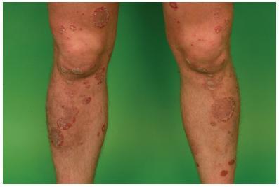 Splývající ložiska lupenky na bércích a kolenou